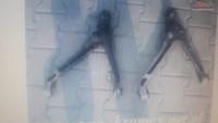 Brat Suspensie Audi R8 Piese auto în Zalau, Salaj Dezmembrari